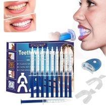 🏆Top 5 kit sbiancamento denti: alternative, offerte, i bestsellers