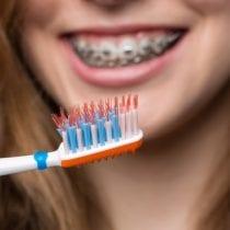 Top 5 spazzolini ortodontici: recensioni, offerte, guida all' acquisto