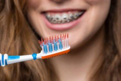 spazzolini ortodontici in sconto